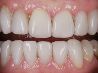 "Perfect white teeth after placing Componeers also known as ""same-day"" veneers"