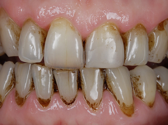 "Discoloured teeth before placing the Componeers also known as ""same-day"" veneers"