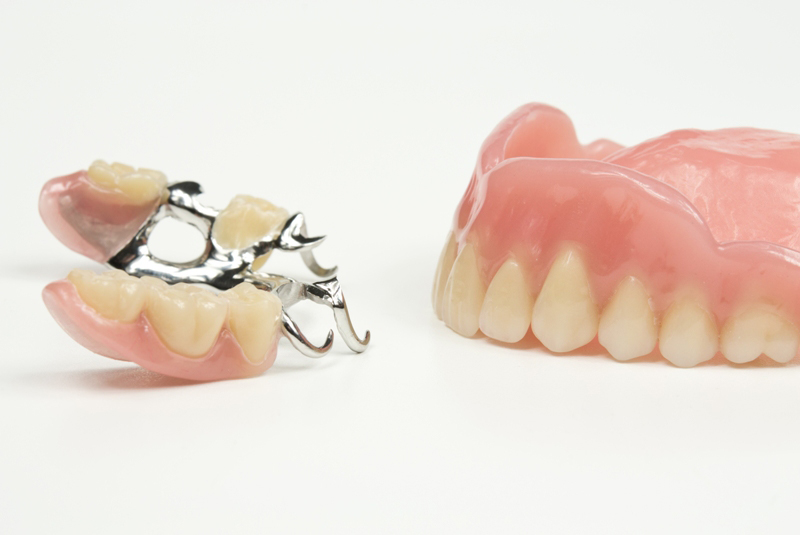 Dublin Dentist - image of Cobalt Chrome Dentures