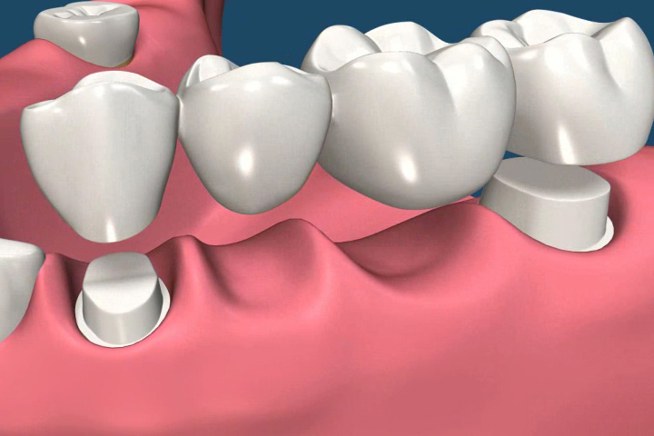 Dental bridge 3D image