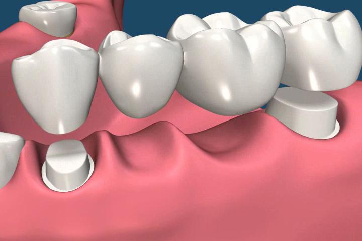 Dental bridge 3D image