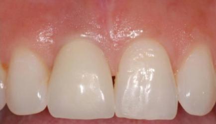 After Dental Implants in Dublin Dentist