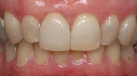After Dental Implant Treatment at Dublin Dentist