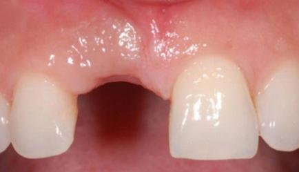 Before Dental Implants in Dublin Dentist
