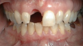 Image of missing tooth before dental implant procedure