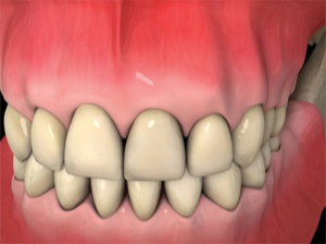 Dublin Dentist - Dental Implants Procedure