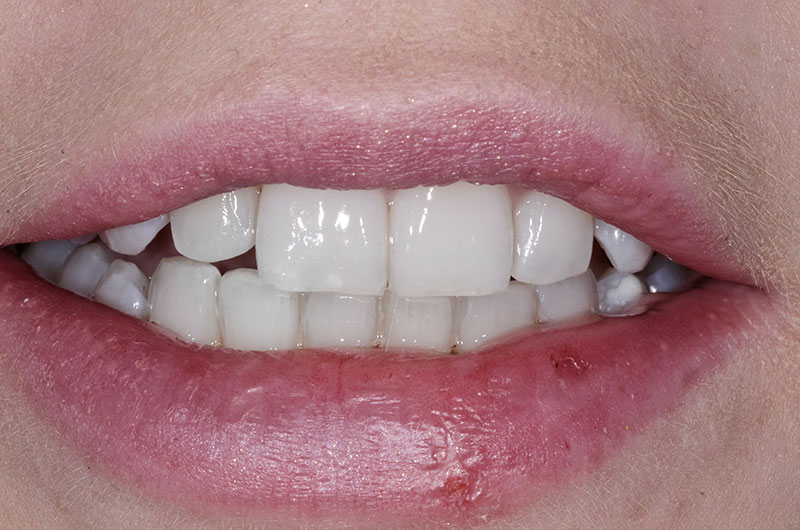 After Clear Aligners Treatment