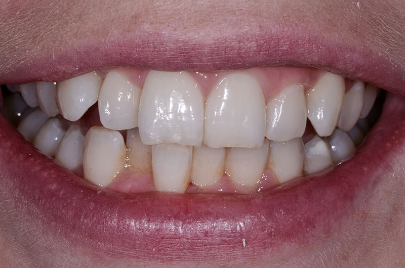Before Clear Aligners Treatment