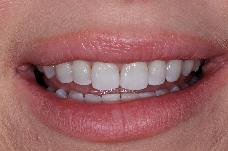 After Fixed Braces Treatment