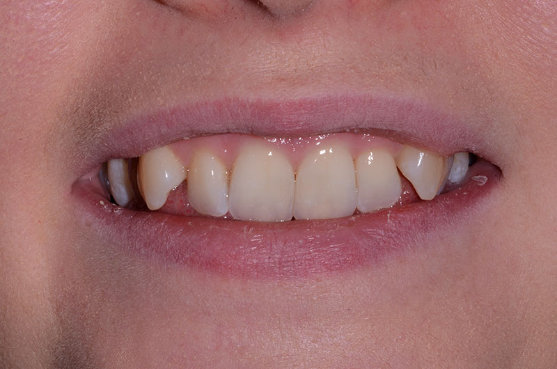 Before Fixed Braces Treatment