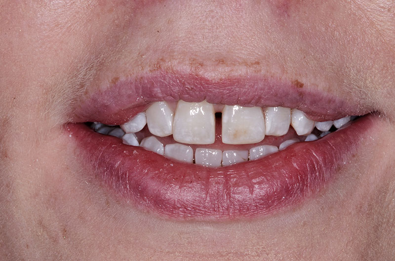 Before Inman Aligner Treatment