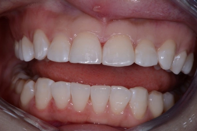 Patient's Teeth After Inman Aligner Treatment at D4 Dentist