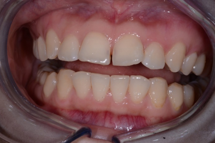 Before Inman Aligner Treatment at Dublin Dentist