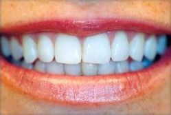 Dublin Dentist patient pictured after invisible braces treatment