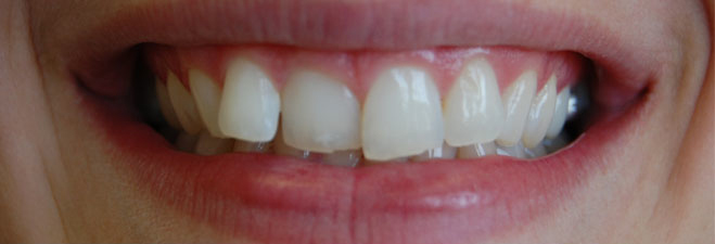 Dublin Dentist - Before Invisible Braces Treatment