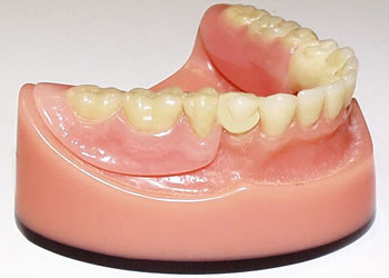 Partial Acrylic Dentures at Dublin Dentist