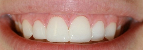 Straight and pearly-white upper teeth with after placing porcelain veneers