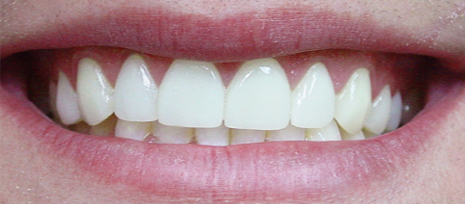 Straight white teeth after placing porcelain veneers