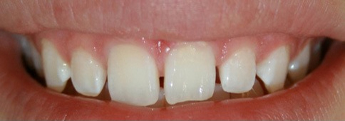 Upper teeth with small gaps before placing porcelain veneers
