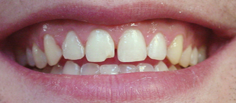 Teeth with small gaps before placing porcelain veneers