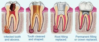 Dublin Dentist Root Canal Treatment