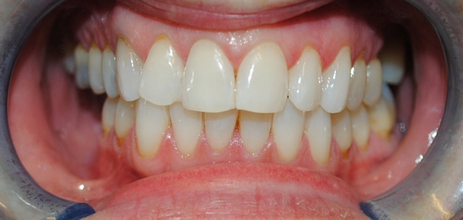 Dublin Dentist - After Teeth Whitening