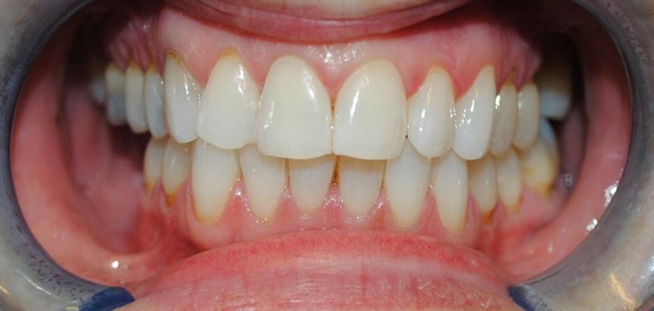 Dublin Dentist - After Teeth Whitening