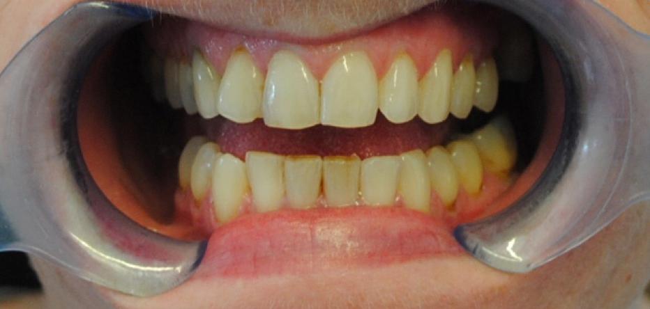 Before Teeth Whitening at Dublin Dentist