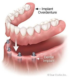 Dental Implants at D4 Dentist