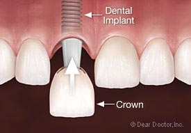 Dental Implants at Dublin Dentist