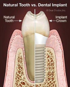 Dental Implants at Ballsbridge Dentist