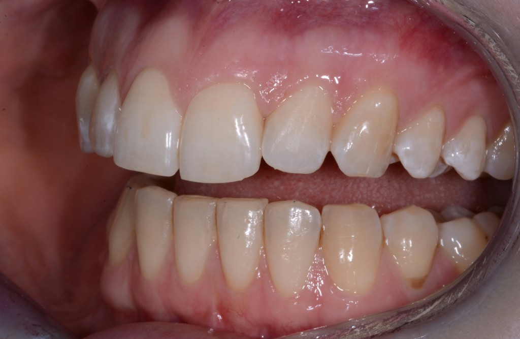 Dental patient's teeth before Inman Aligner treatment