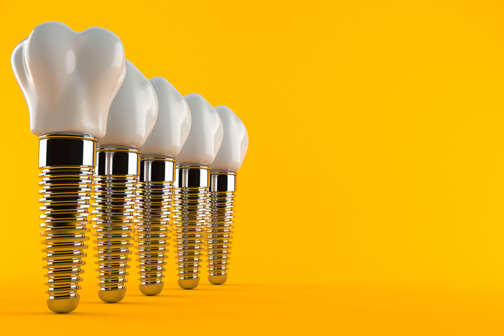 Image of dental implants on yellow background