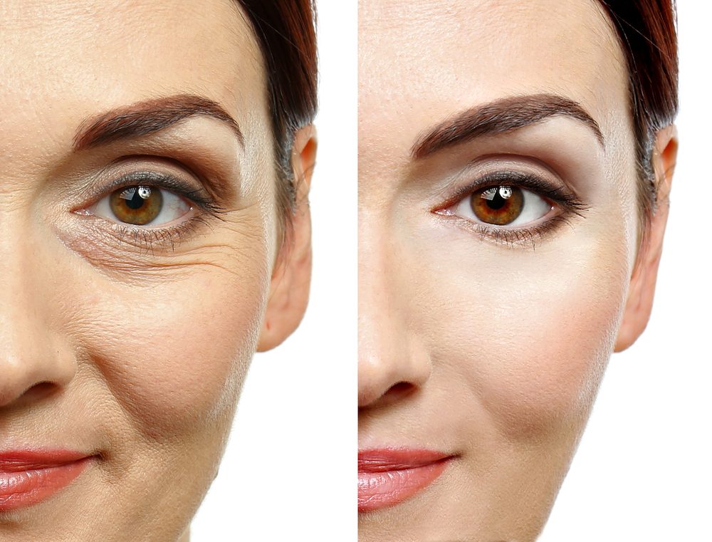 Woman's face before and after Facial aesthetic treatments