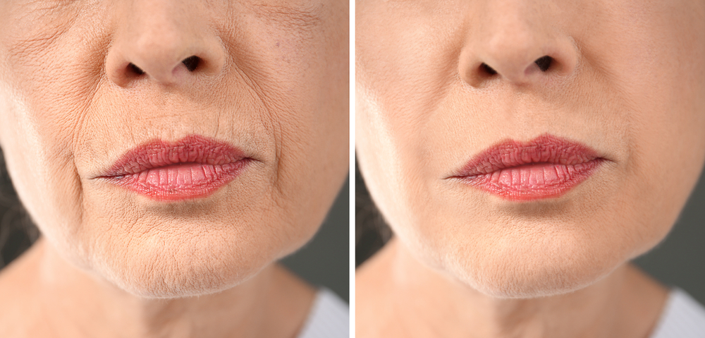 Senior woman before and after Facial aesthetic treatments