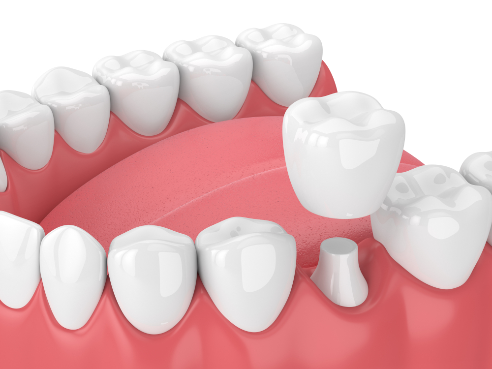 3d render of jaw with teeth and tooth crown restoration over white background