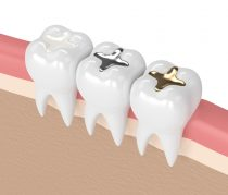 3d render of teeth with gold, amalgam and composite inlay tooth filling