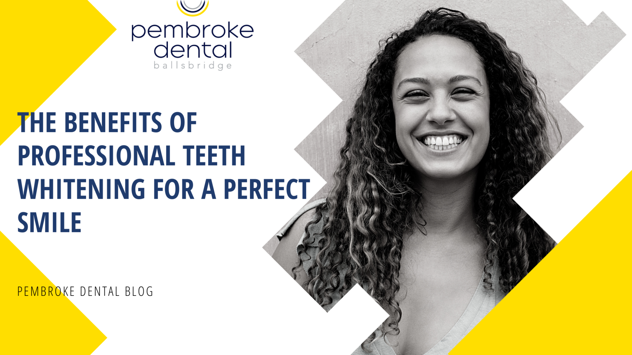 The Benefits of Professional Teeth Whitening for a Perfect Smile