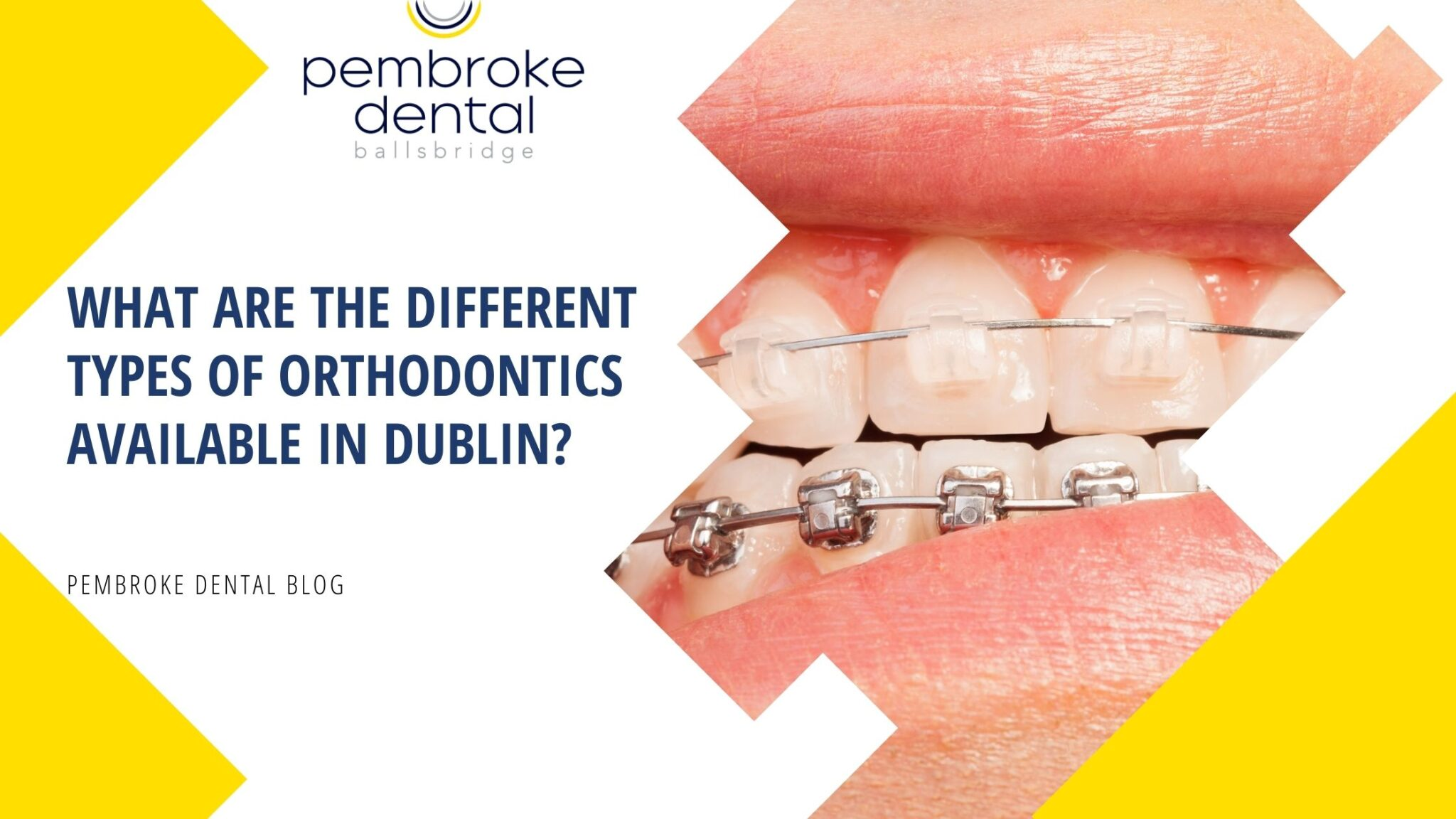 What are the different types of orthodontics available in Dublin