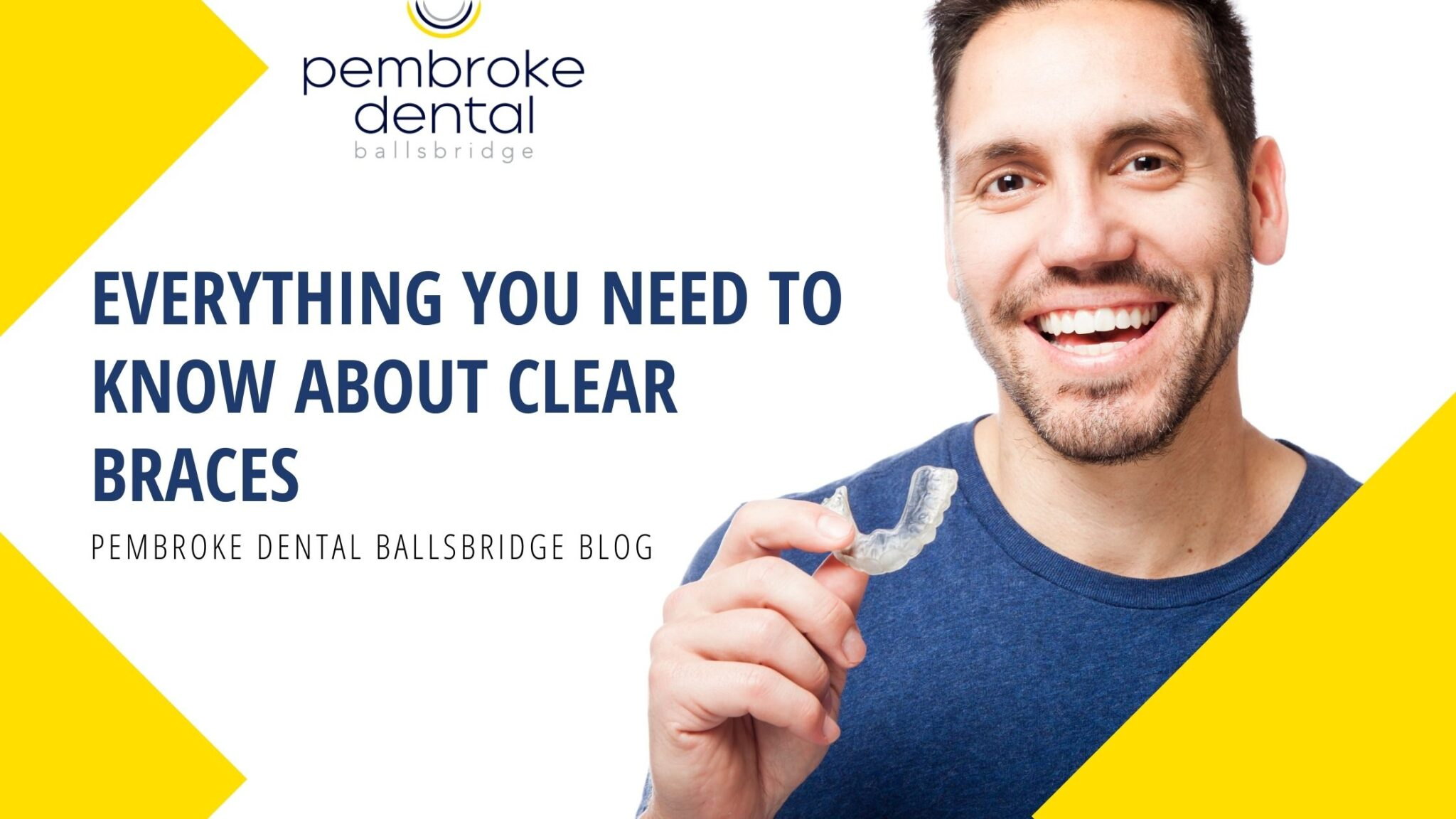 everything you need to know about clear braces in Dublin