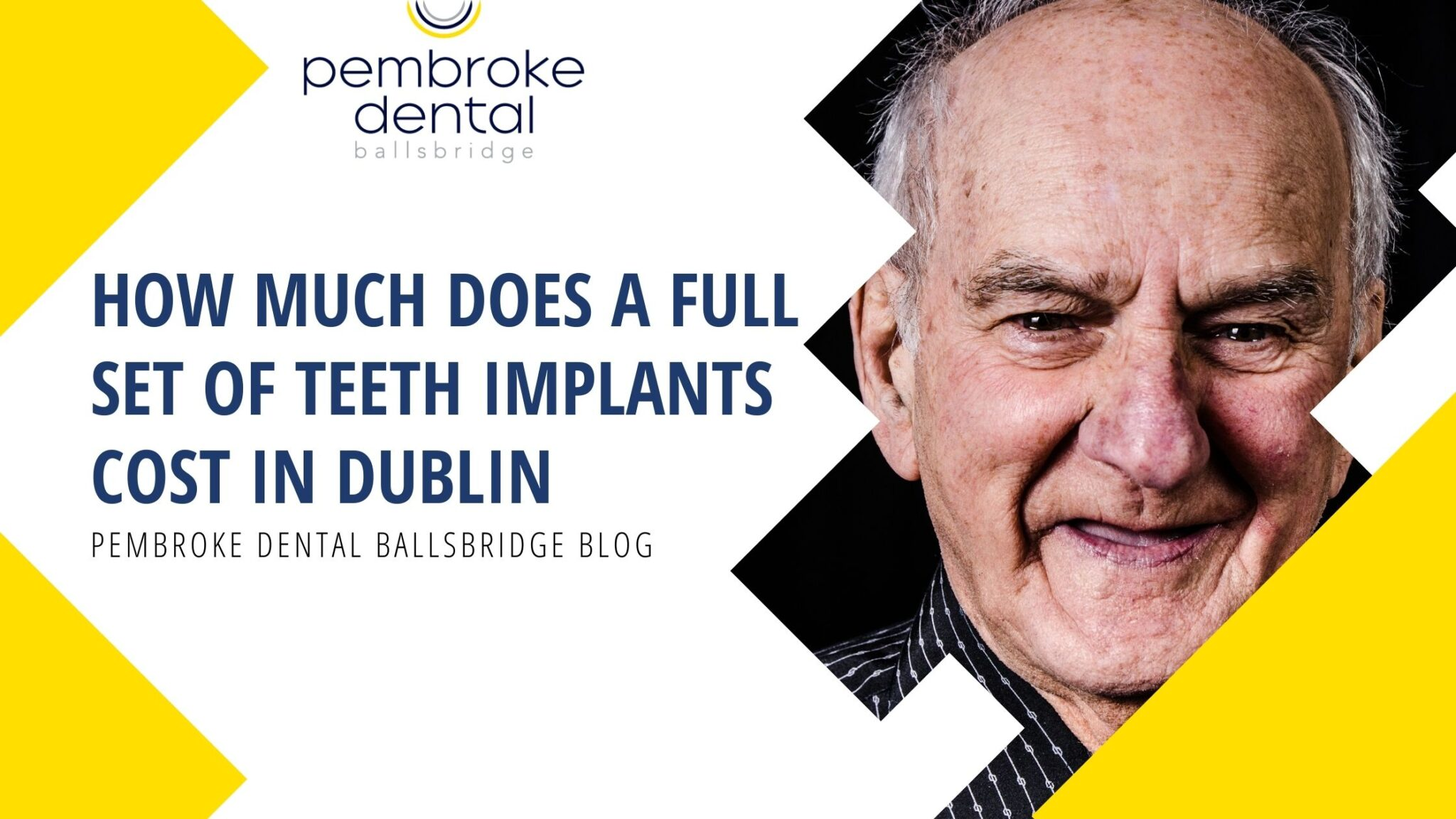 How much does a full set of dental implants cost