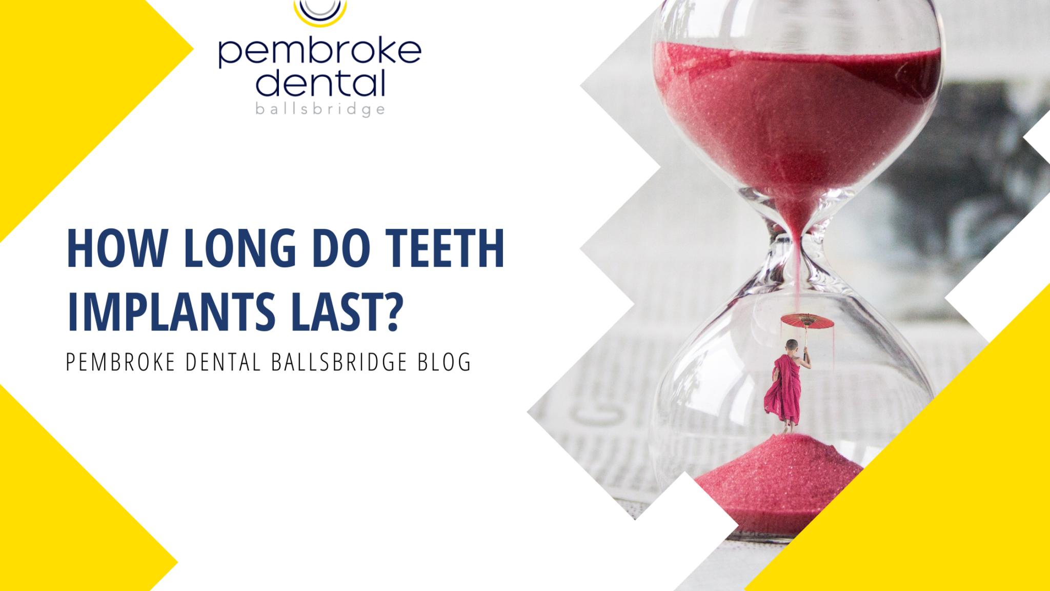 How Long Do Teeth Implants Last