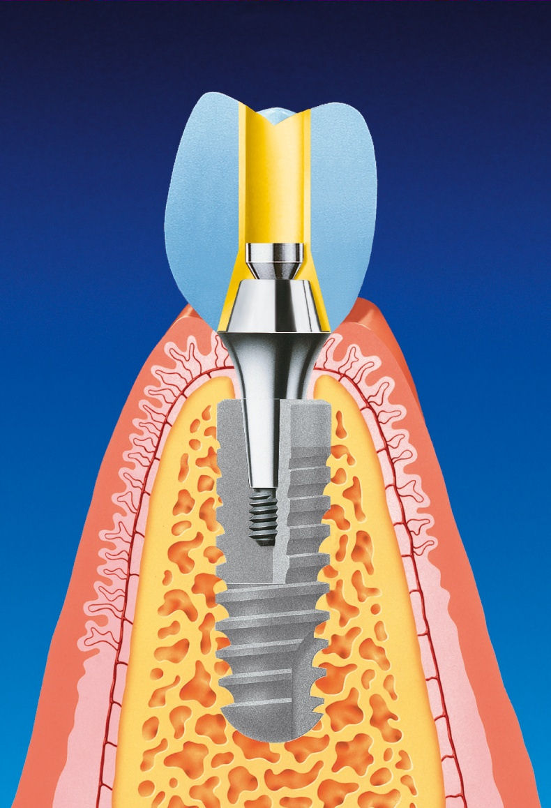 The detainee and part of the dental implant is buried beneath the gum