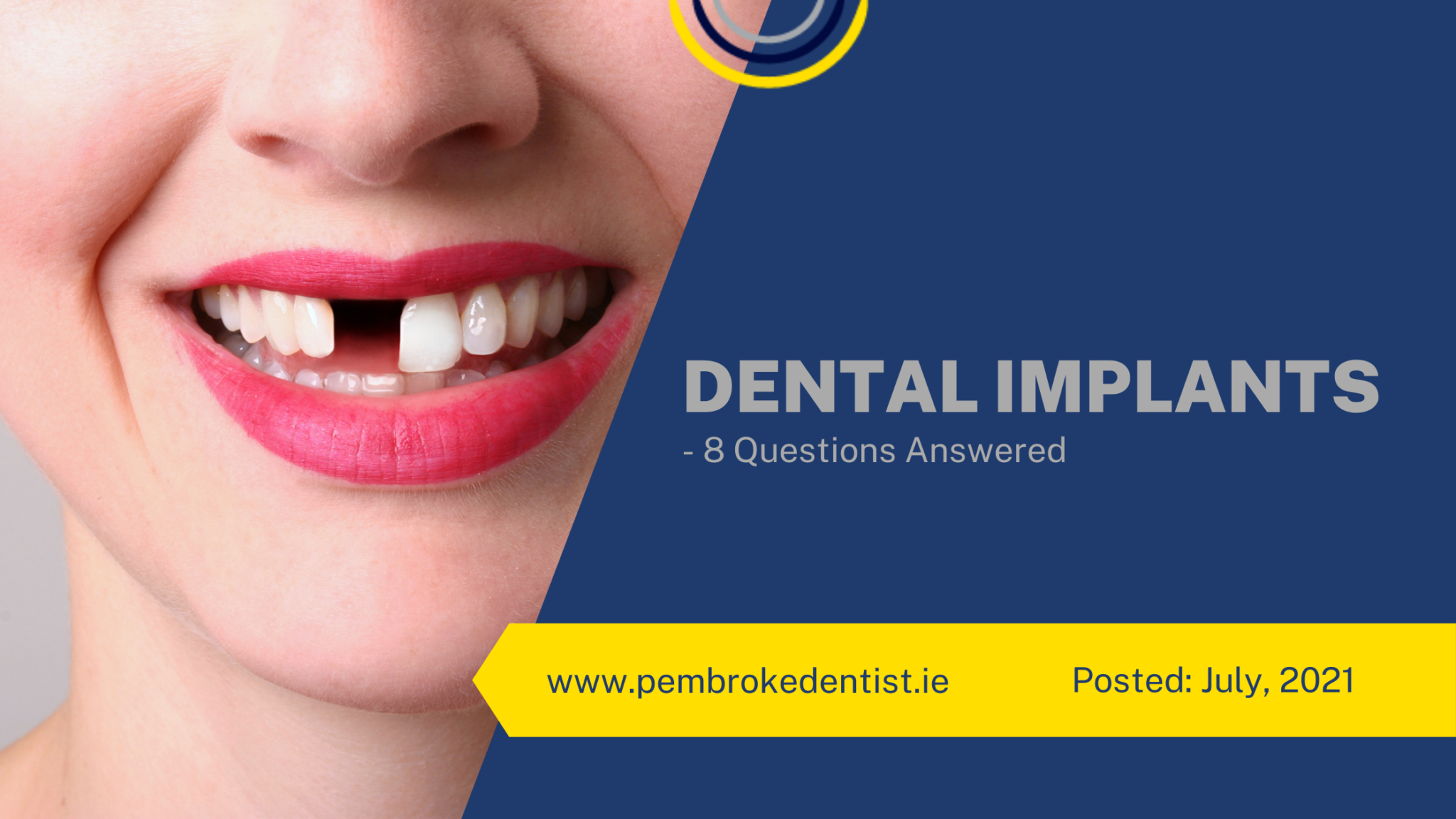 Dental implants- 8 questions answered